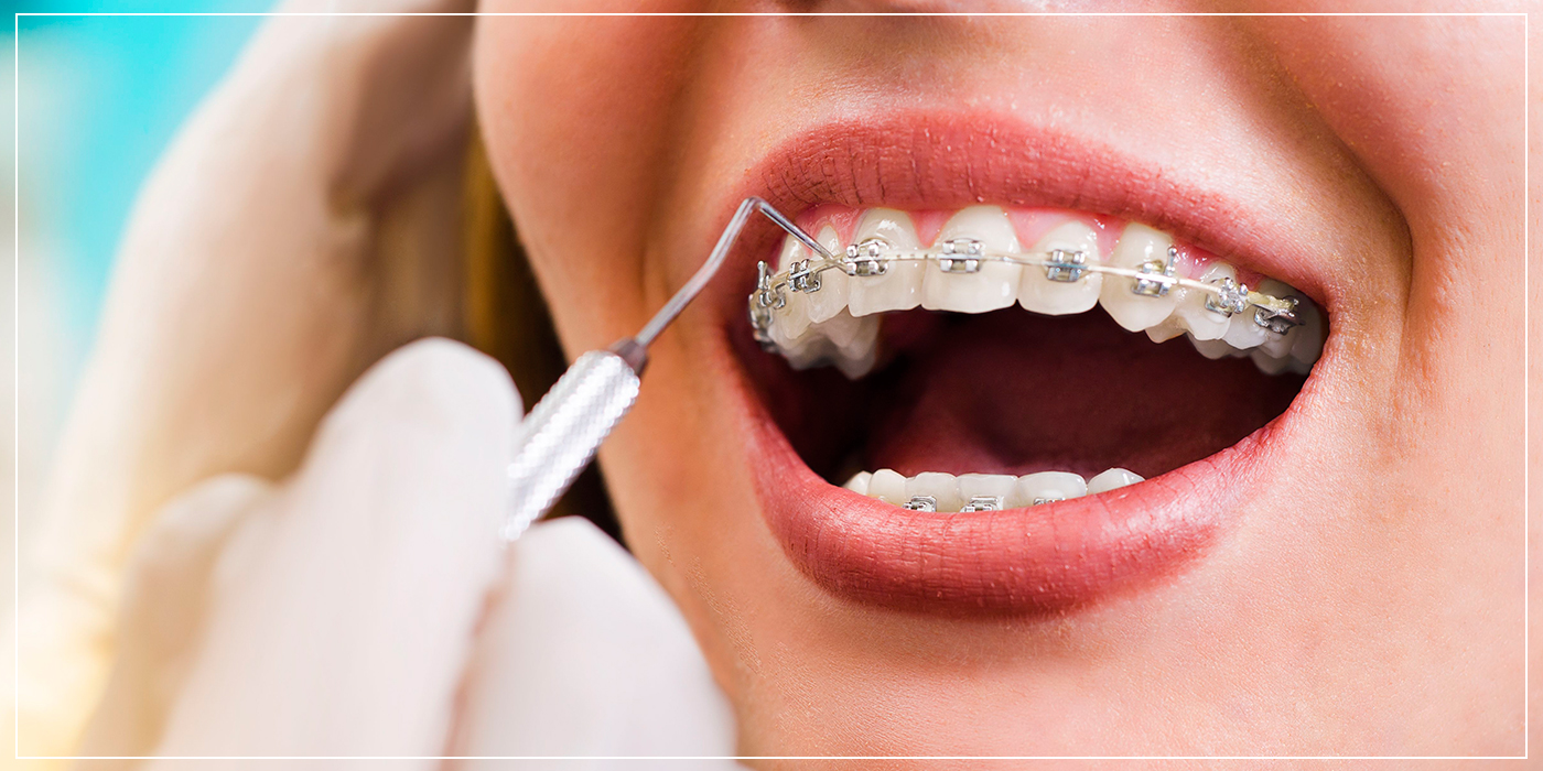 Ortodoncia Brackets - Instituto Dental Dr. Carreno