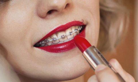 Tratamientos de ortodoncia Instituto Dental Dr. Carreno