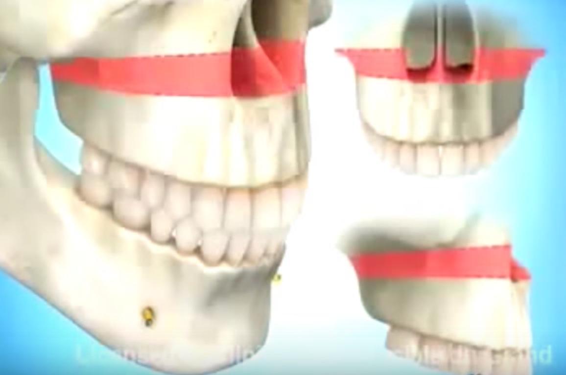 Sonrisa gingival cirugía ortognática Instituto Dental Doctor Carreño MADRID