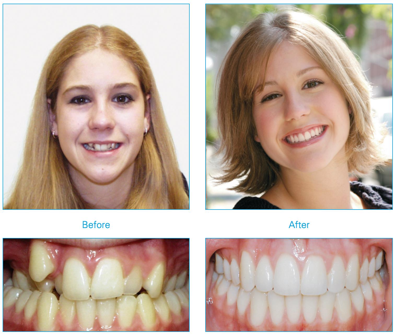 tratamiento ortodoncia con sistema Damon antes y después Instituto Dental Doctor Carreño