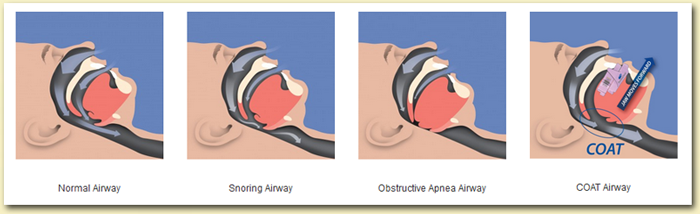 ferulas-protrusion-mandibular-apnea Instituto Dental Dr. Carreño