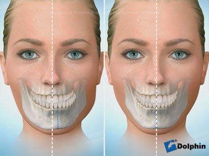 Instituto Dental Dr. Carreño, experto en cirugía ortognática. Correción asimetría facial.