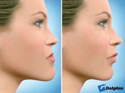 Instituto Dental Dr. Carreño, experto en cirugía ortognática. Correción prognatismo mandibular.