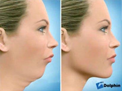 Instituto Dental Dr. Carreño, experto en cirugía ortognática. Correción retrognatia mandibular.