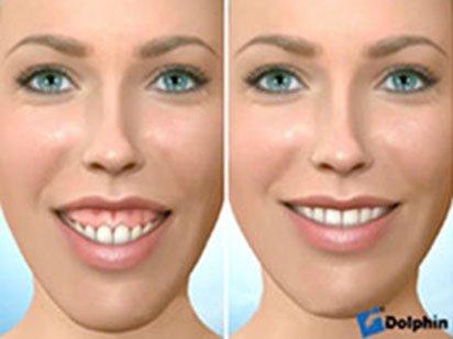 Instituto Dental Dr. Carreño, experto en cirugía ortognática. Correción sonrisa gingival.