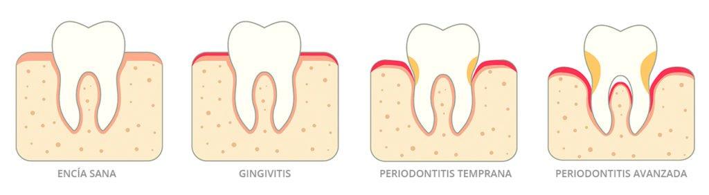 Evolución de la enfermedad periodontal. De gingivitis a periodontitis. Encías. Instituto Dental Doctor Carreño. Dentista Madrid